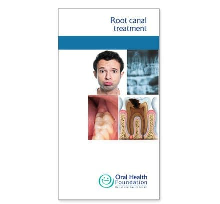 'Root canal treatment' prestige leaflets