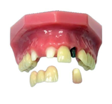 Congenitally Missing Lateral Incisor Model