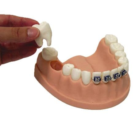 Dental Care Model with Braces