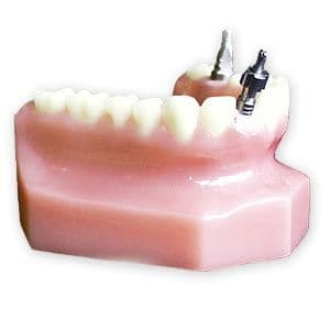Single Implant With Soft Tissue Model